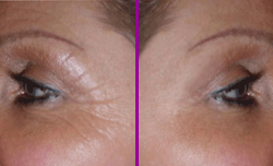PHOTO - CACI eye treatment before & after